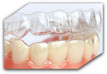 Aparate dentare tip gutiere Invisalign Clear Aligner